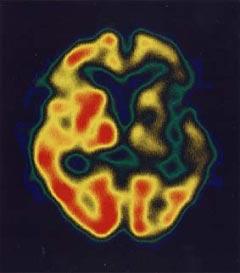 ... 検査の画像(一過性脳虚血